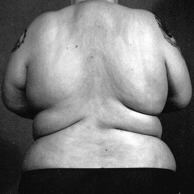 Image shows a black and white image of a person's back, unclothed, with lots of grain